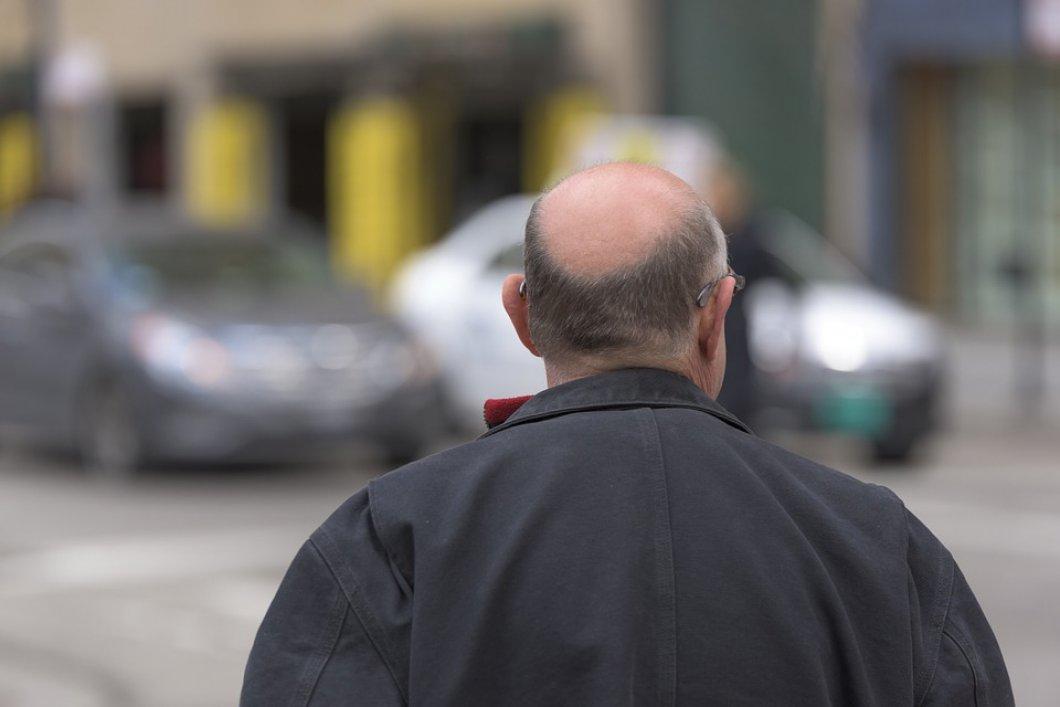 Plešatění souvisí se znečištěním planety, myslí si vědci. Ztráta vlasů hrozí především lidem ve velkých městech