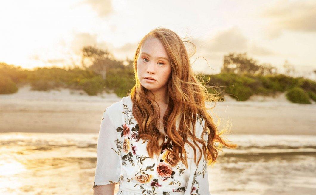 Stala se úspěšnou modelkou i přes to, že trpí Downovým syndromem